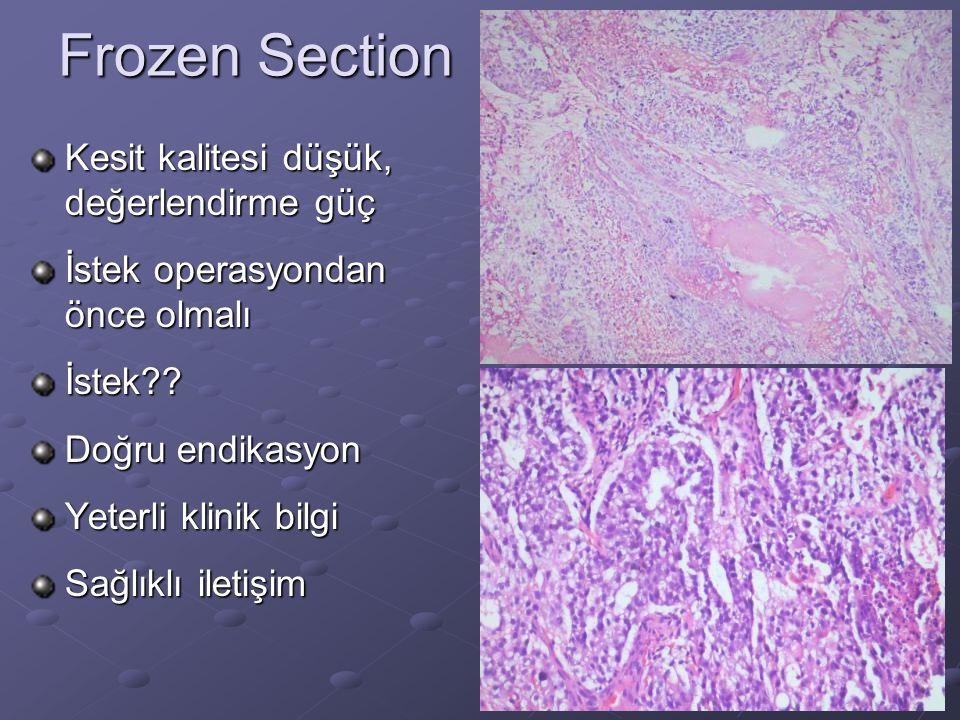 Frozen Section Kesit kalitesi düşük, değerlendirme güç