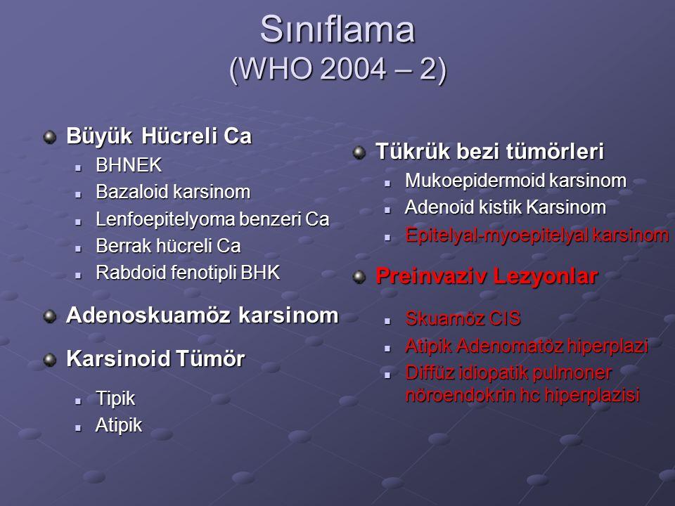 Sınıflama (WHO 2004 – 2) Büyük Hücreli Ca Tükrük bezi tümörleri