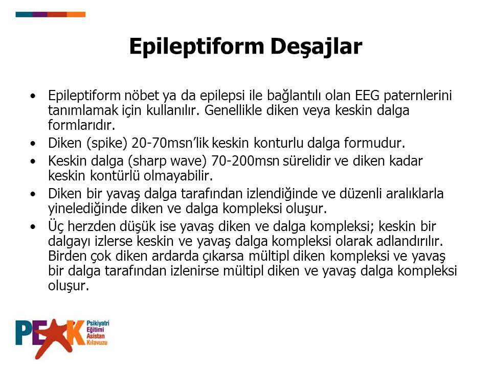 Epileptiform Deşajlar