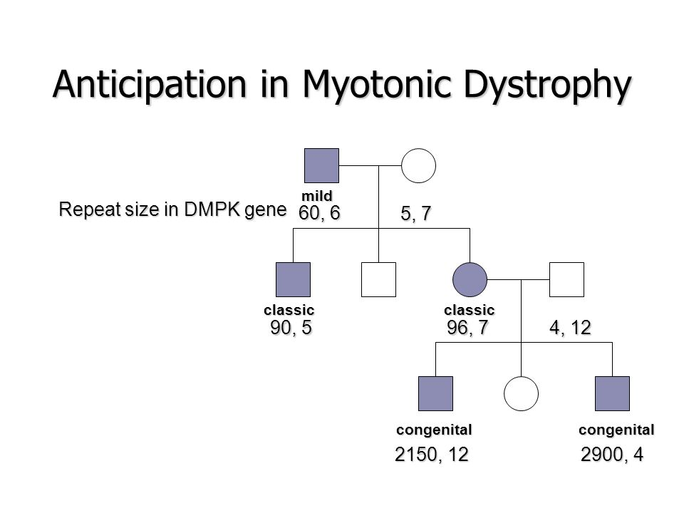 Anticipation in Myotonic Dystrophy