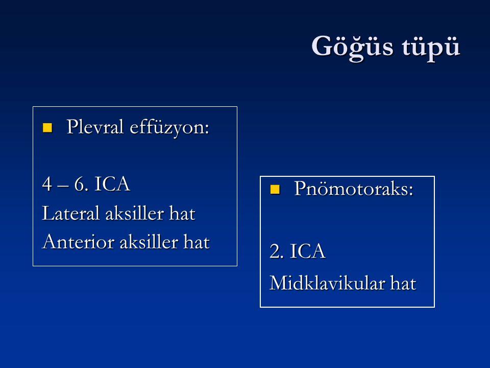 Göğüs tüpü Plevral effüzyon: 4 – 6. ICA Lateral aksiller hat