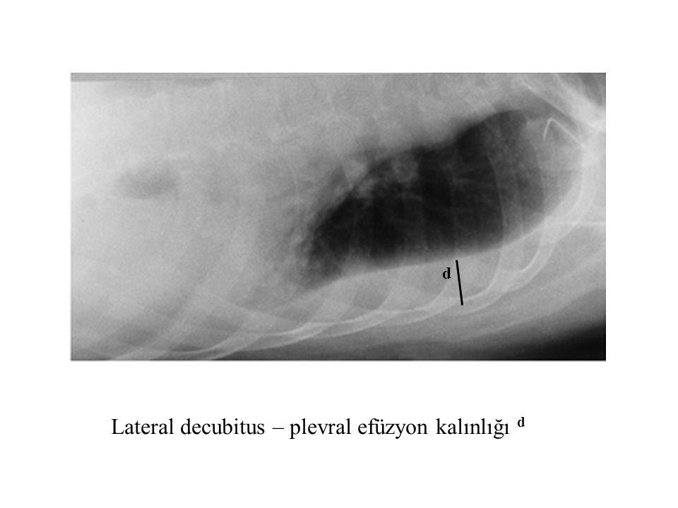 Lateral decubitus – plevral efüzyon kalınlığı d