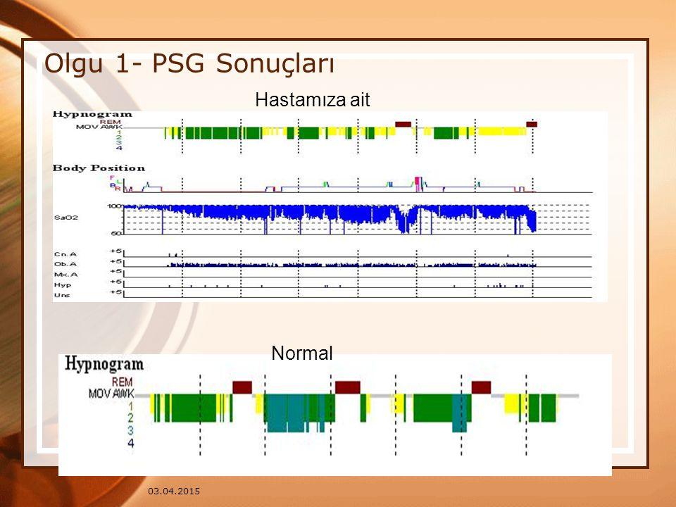 Olgu 1- PSG Sonuçları Hastamıza ait Normal 09.04.2017