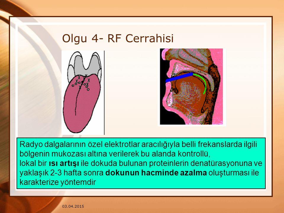 Olgu 4- RF Cerrahisi Radyo dalgalarının özel elektrotlar aracılığıyla belli frekanslarda ilgili.