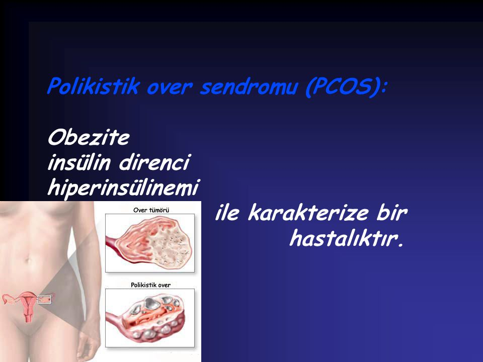 Polikistik over sendromu (PCOS):