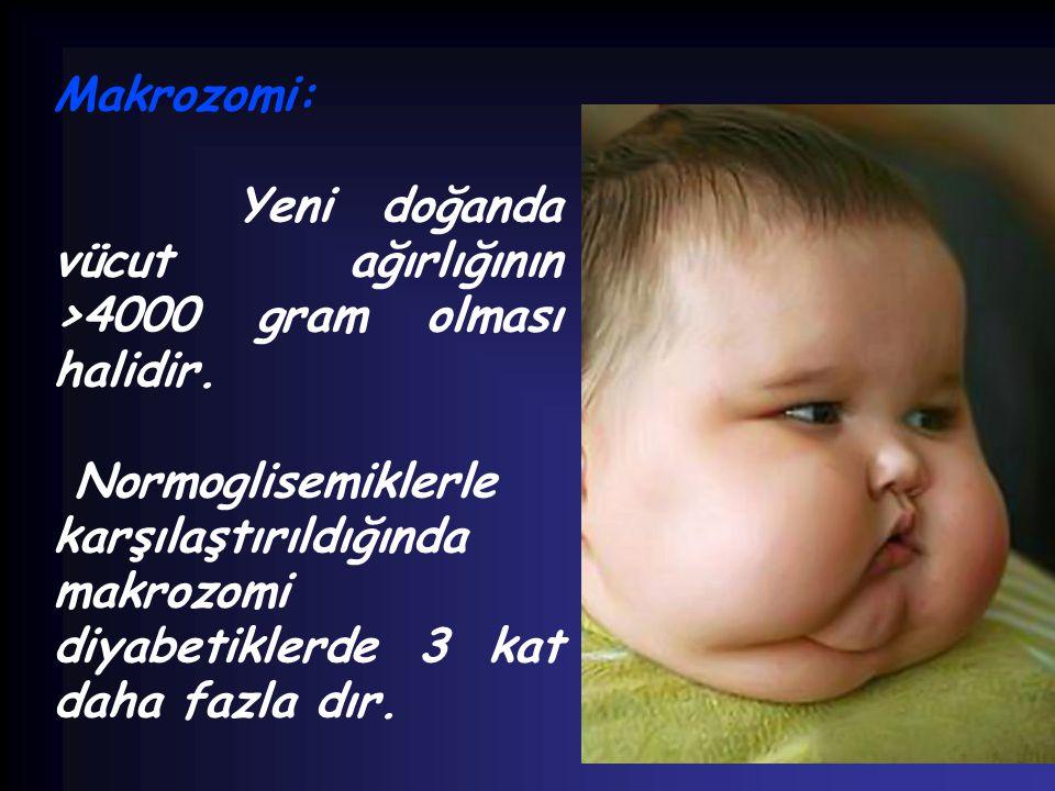 Makrozomi: Yeni doğanda vücut ağırlığının >4000 gram olması halidir.