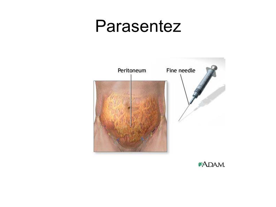 Parasentez