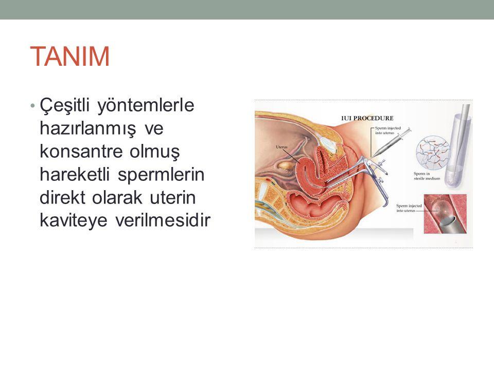 TANIM Çeşitli yöntemlerle hazırlanmış ve konsantre olmuş hareketli spermlerin direkt olarak uterin kaviteye verilmesidir.