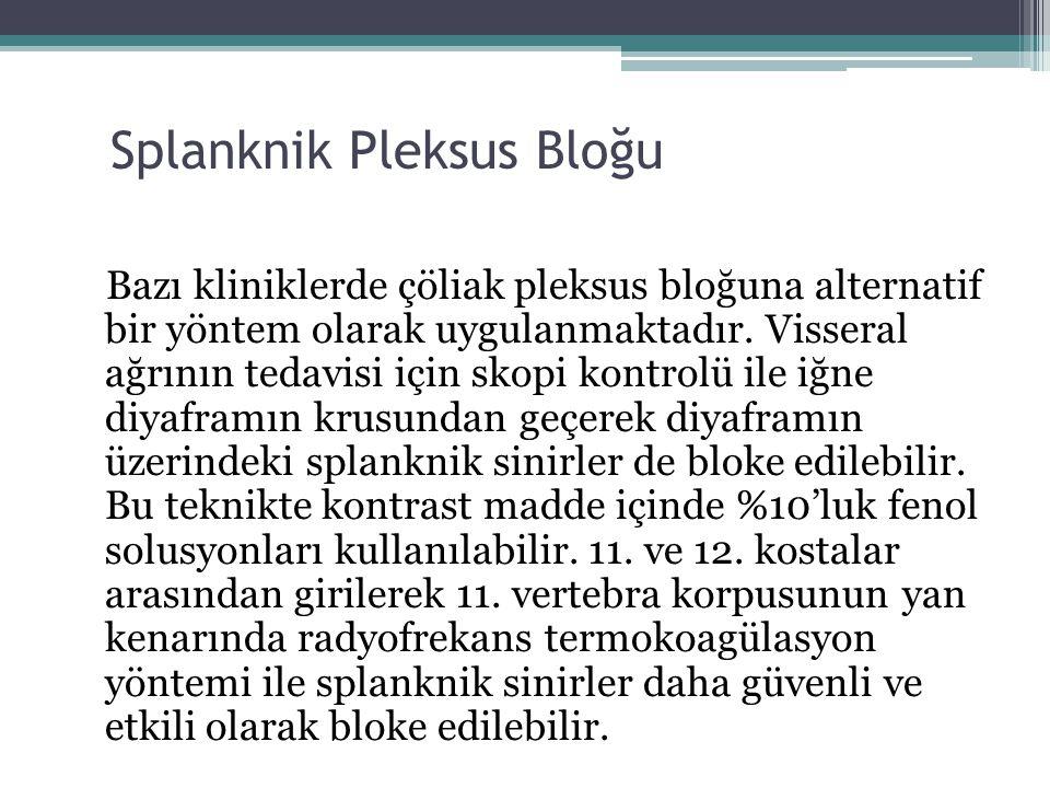 Splanknik Pleksus Bloğu