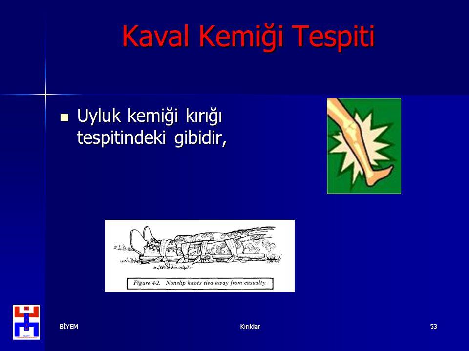 Kaval Kemiği Tespiti Uyluk kemiği kırığı tespitindeki gibidir, BİYEM