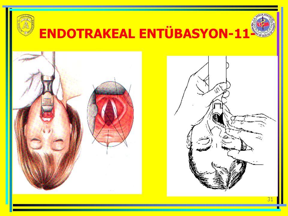 ENDOTRAKEAL ENTÜBASYON-11-