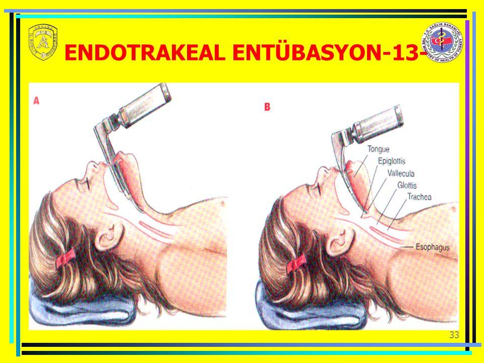 ENDOTRAKEAL ENTÜBASYON-13-