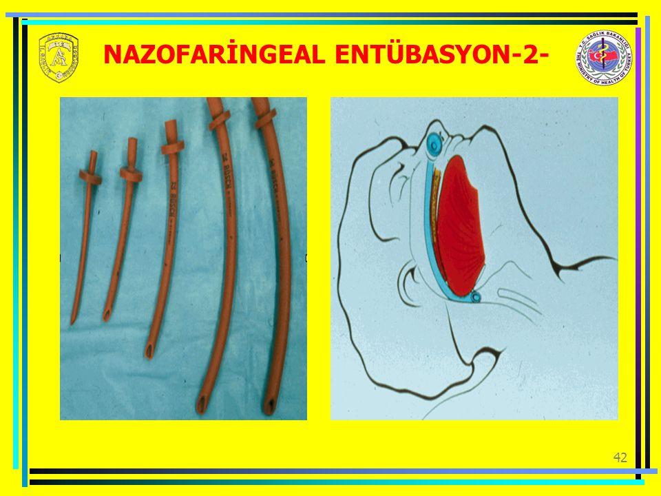 NAZOFARİNGEAL ENTÜBASYON-2-