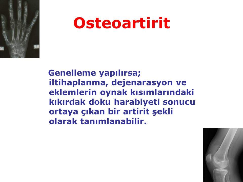 Osteoartirit