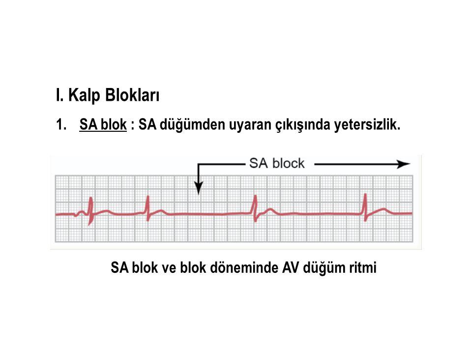 I. Kalp Blokları SA blok : SA düğümden uyaran çıkışında yetersizlik.