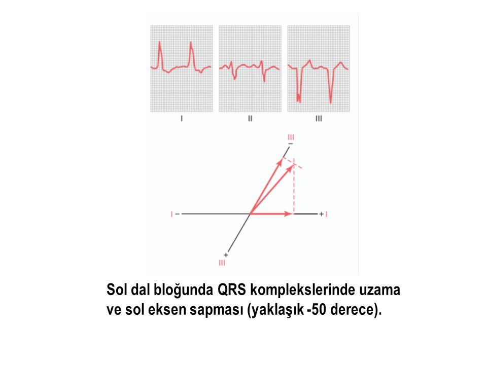 Sol dal bloğunda QRS komplekslerinde uzama ve sol eksen sapması (yaklaşık -50 derece).