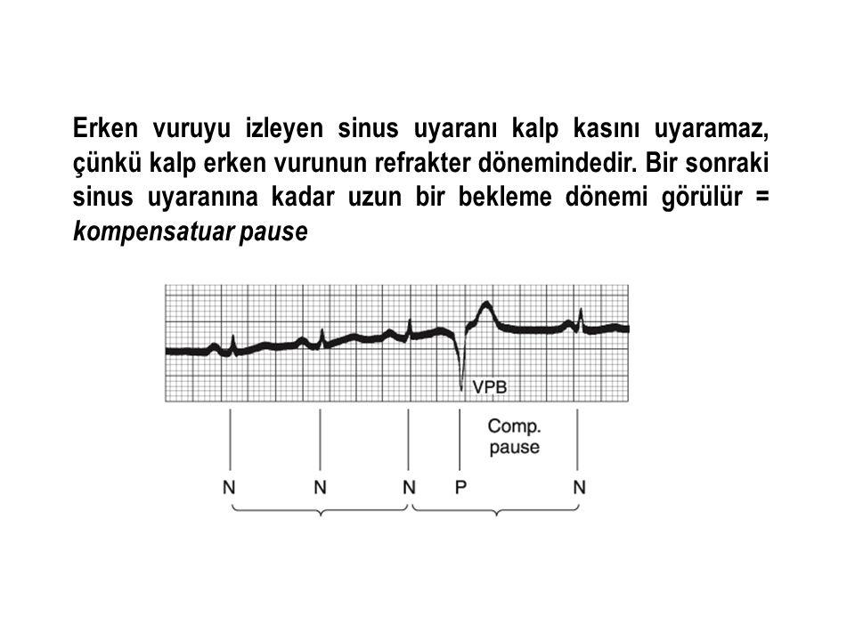 Erken vuruyu izleyen sinus uyaranı kalp kasını uyaramaz, çünkü kalp erken vurunun refrakter dönemindedir.