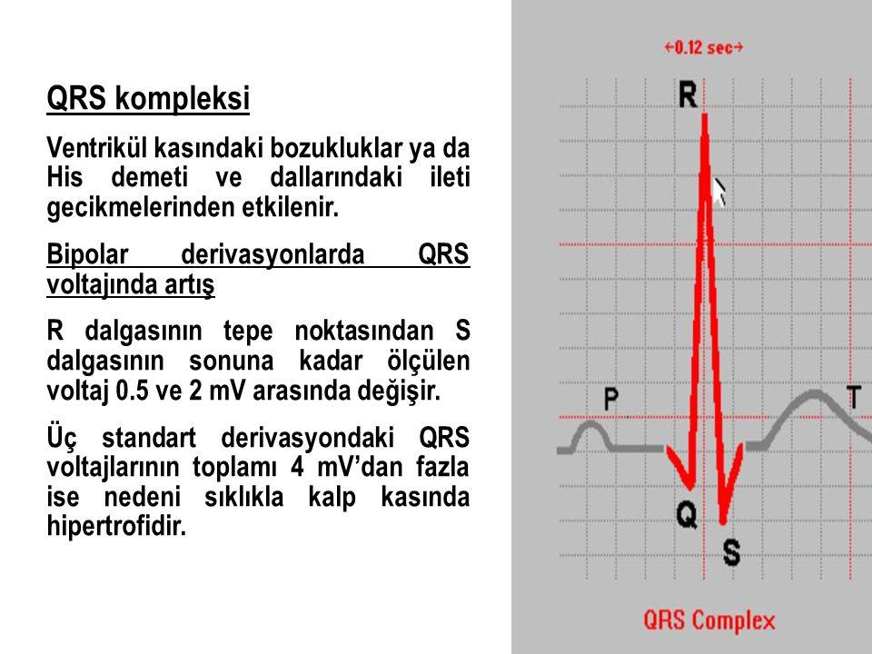 QRS kompleksi Ventrikül kasındaki bozukluklar ya da His demeti ve dallarındaki ileti gecikmelerinden etkilenir.