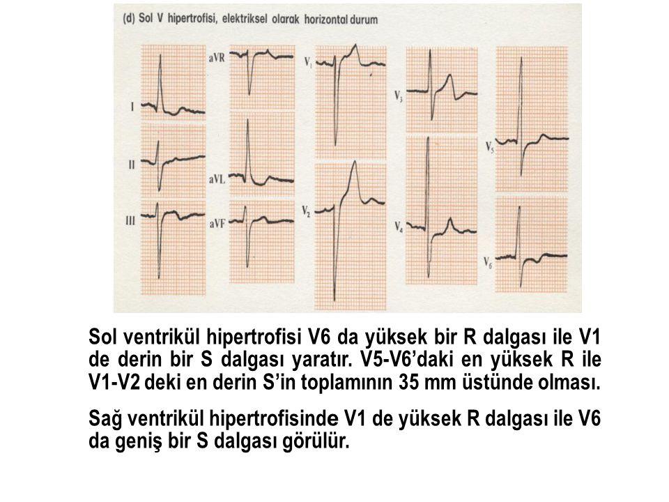 Sol ventrikül hipertrofisi V6 da yüksek bir R dalgası ile V1 de derin bir S dalgası yaratır. V5-V6'daki en yüksek R ile V1-V2 deki en derin S'in toplamının 35 mm üstünde olması.