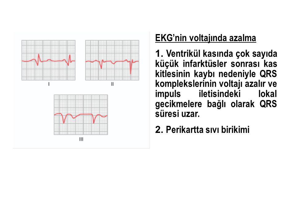 EKG'nin voltajında azalma