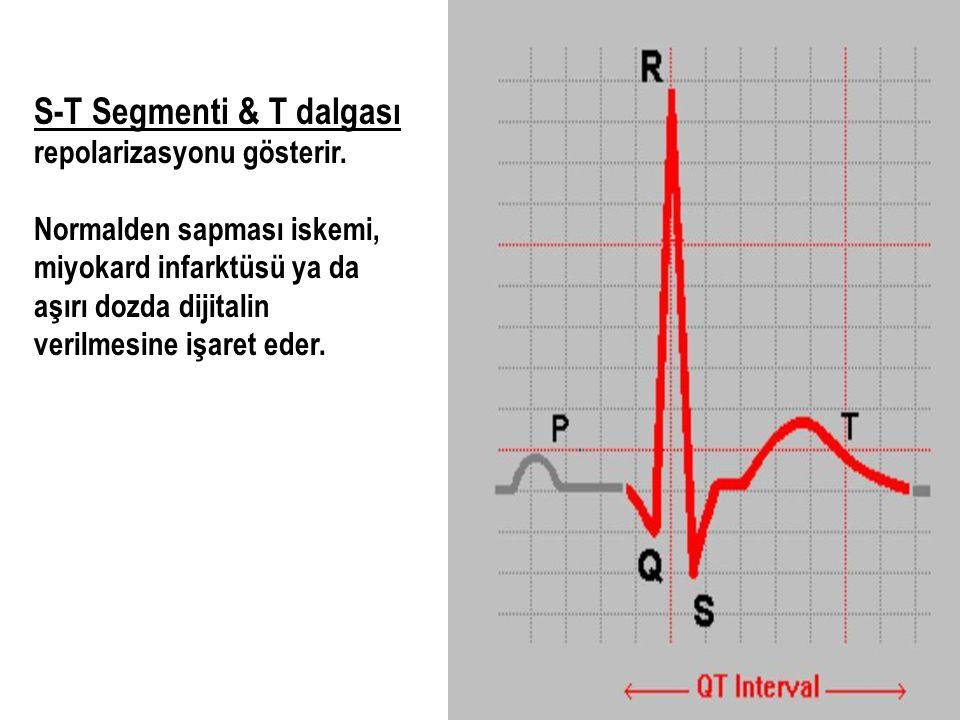 S-T Segmenti & T dalgası repolarizasyonu gösterir.