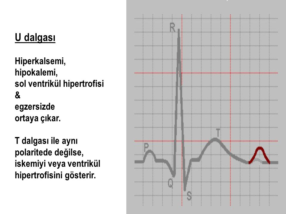 U dalgası Hiperkalsemi, hipokalemi, sol ventrikül hipertrofisi &
