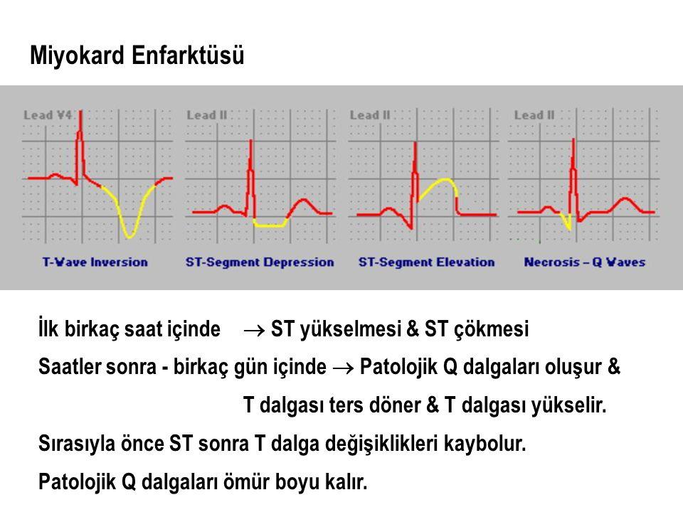 Miyokard Enfarktüsü İlk birkaç saat içinde  ST yükselmesi & ST çökmesi. Saatler sonra - birkaç gün içinde  Patolojik Q dalgaları oluşur &