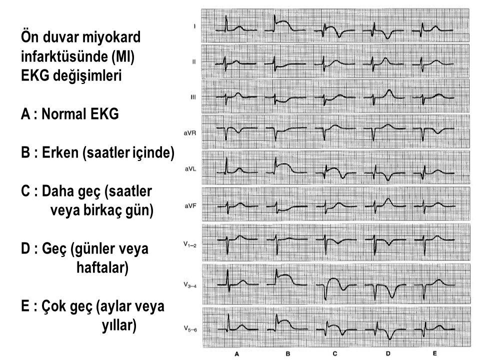 Ön duvar miyokard infarktüsünde (MI) EKG değişimleri. A : Normal EKG. B : Erken (saatler içinde)