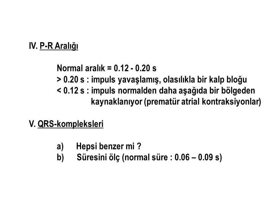 IV. P-R Aralığı Normal aralık = 0.12 - 0.20 s > 0.20 s : impuls yavaşlamış, olasılıkla bir kalp bloğu