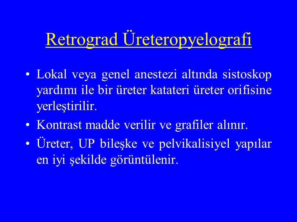 Retrograd Üreteropyelografi