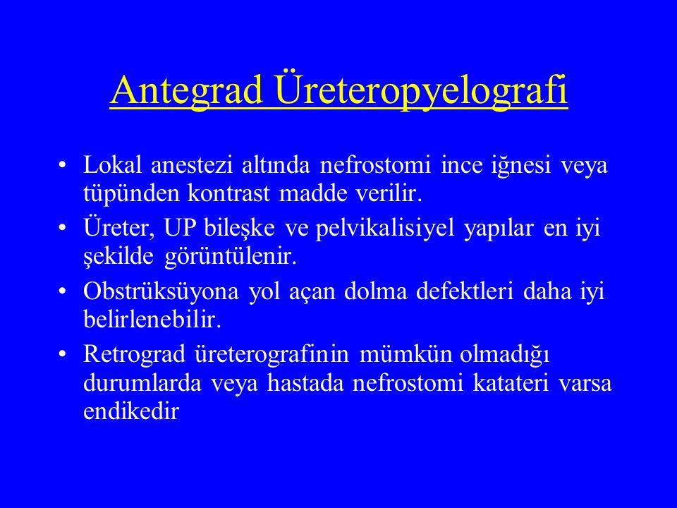 Antegrad Üreteropyelografi