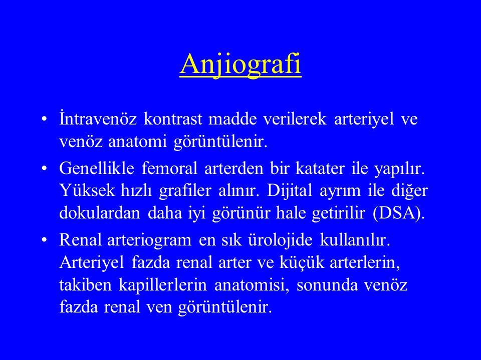 Anjiografi İntravenöz kontrast madde verilerek arteriyel ve venöz anatomi görüntülenir.