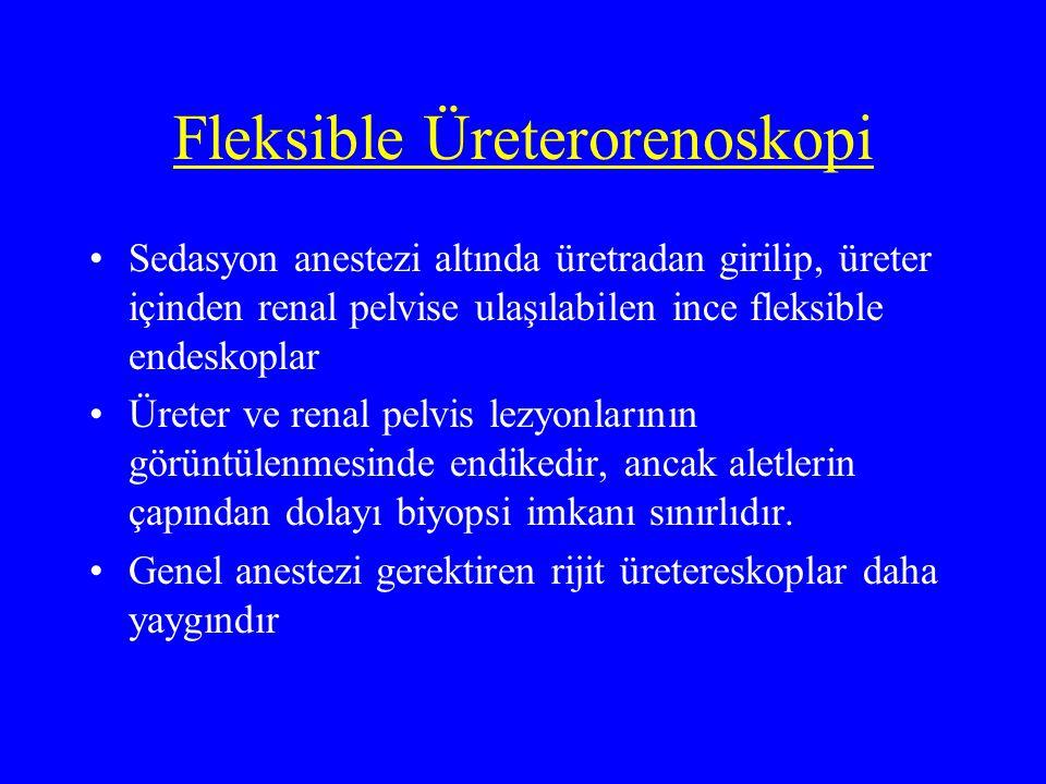 Fleksible Üreterorenoskopi