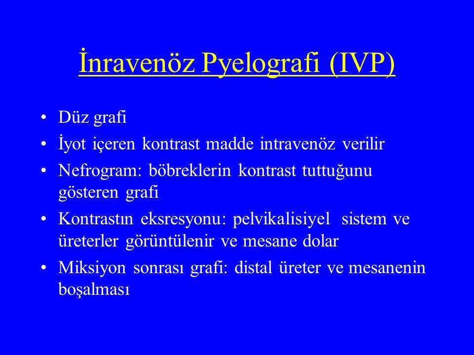 İnravenöz Pyelografi (IVP)