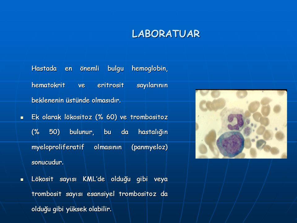 LABORATUAR Hastada en önemli bulgu hemoglobin, hematokrit ve eritrosit sayılarının beklenenin üstünde olmasıdır.