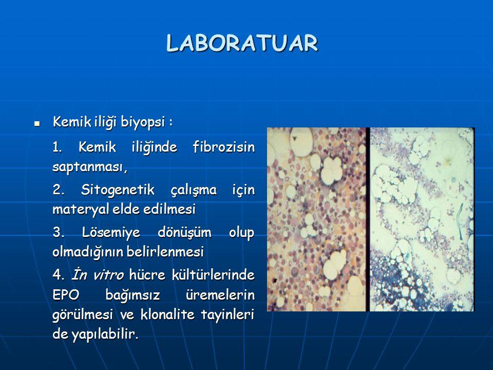 LABORATUAR Kemik iliği biyopsi :