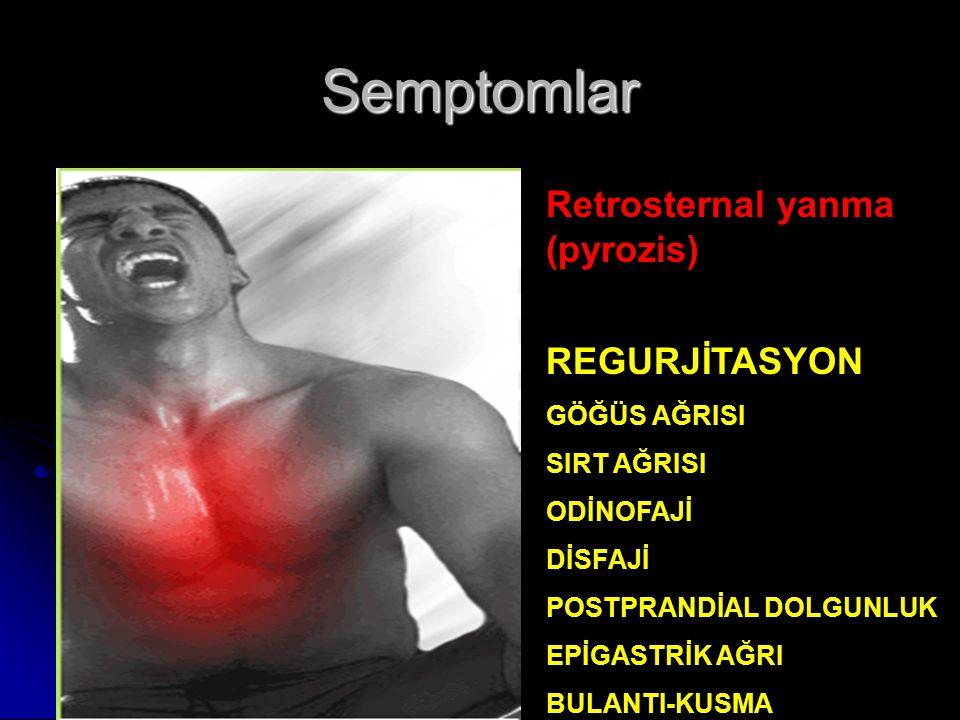Semptomlar Retrosternal yanma (pyrozis) REGURJİTASYON GÖĞÜS AĞRISI