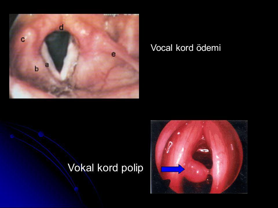 Vocal kord ödemi Vokal kord polip