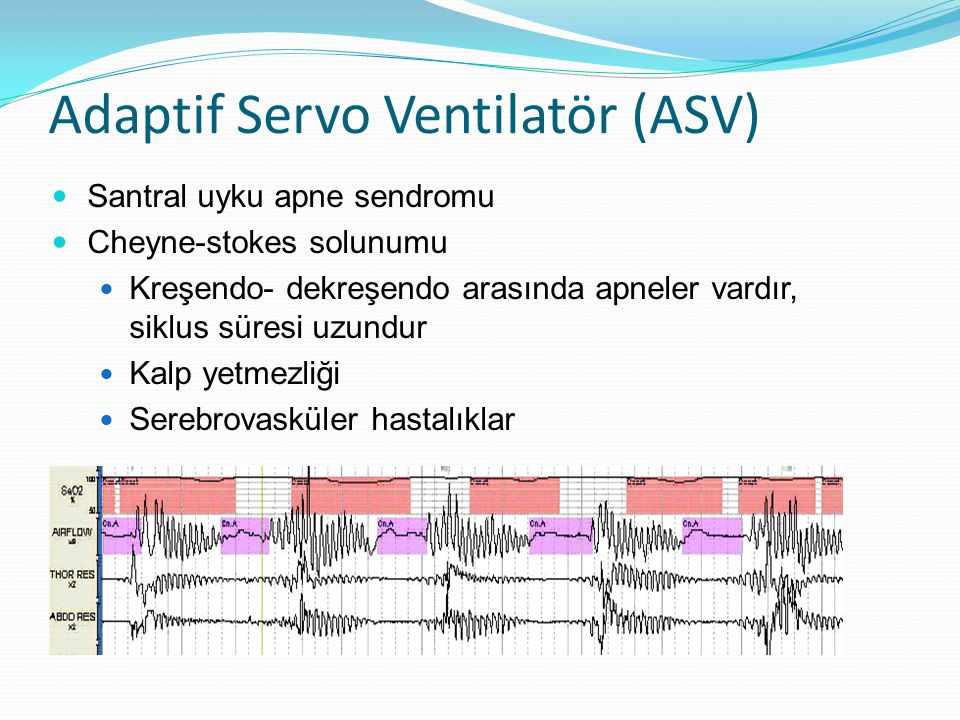 Adaptif Servo Ventilatör (ASV)