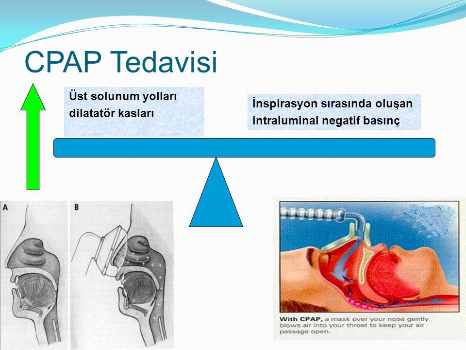 CPAP Tedavisi Üst solunum yolları dilatatör kasları