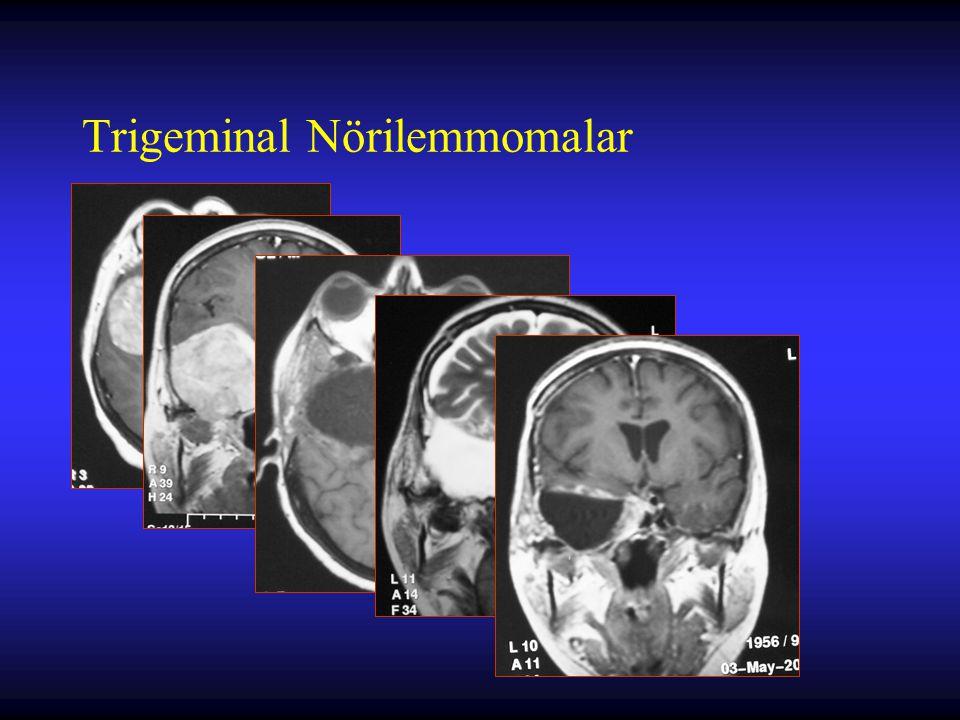 Trigeminal Nörilemmomalar