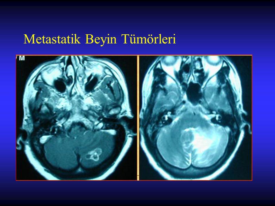 Metastatik Beyin Tümörleri