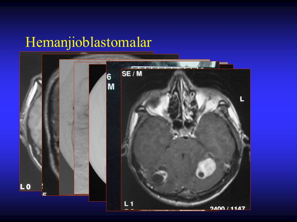 Hemanjioblastomalar