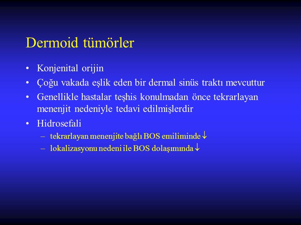 Dermoid tümörler Konjenital orijin