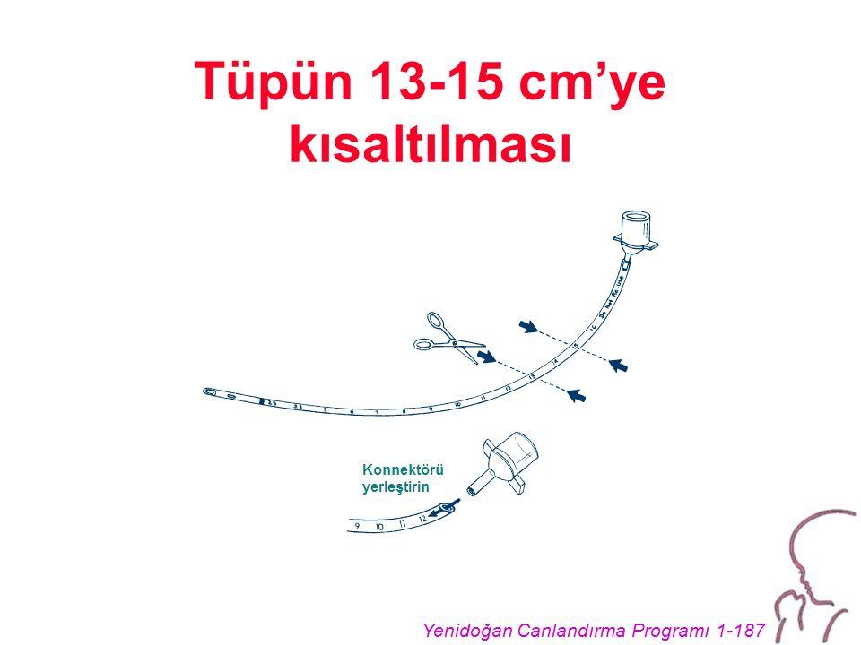 Tüpün 13-15 cm'ye kısaltılması