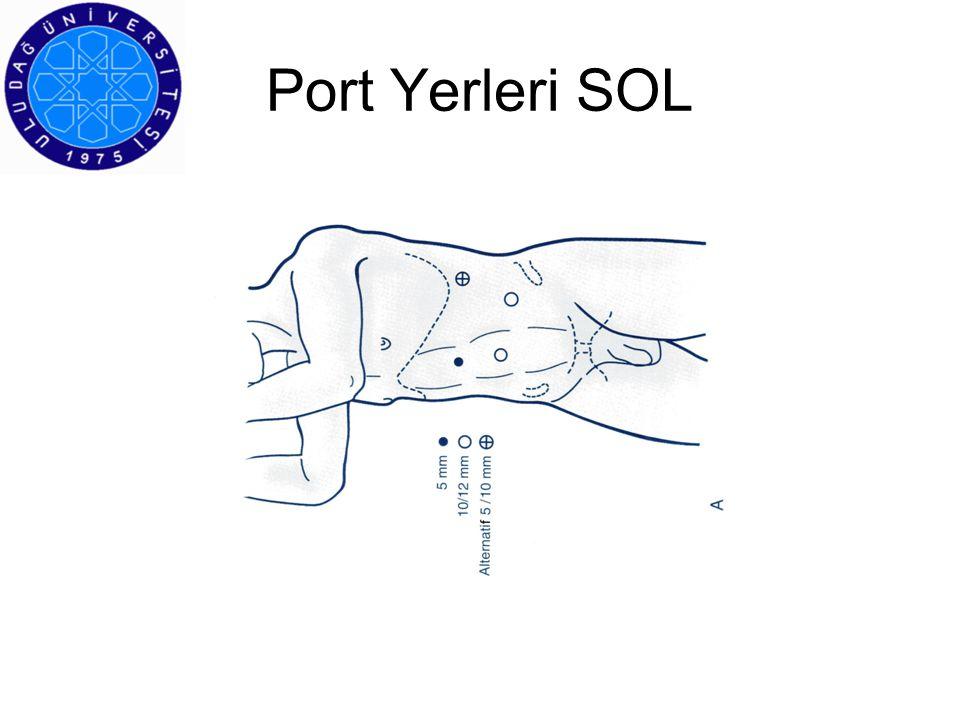 Port Yerleri SOL