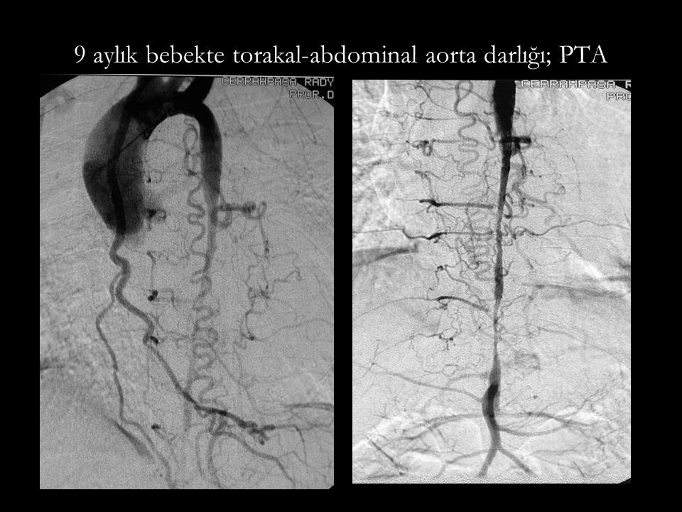 9 aylık bebekte torakal-abdominal aorta darlığı; PTA