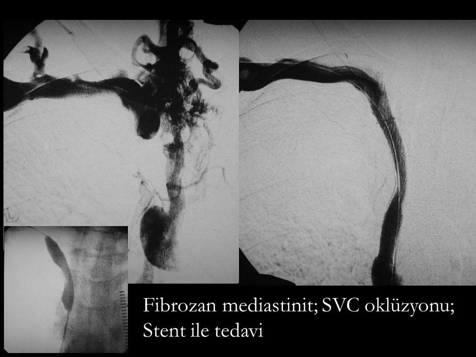 Fibrozan mediastinit; SVC oklüzyonu;