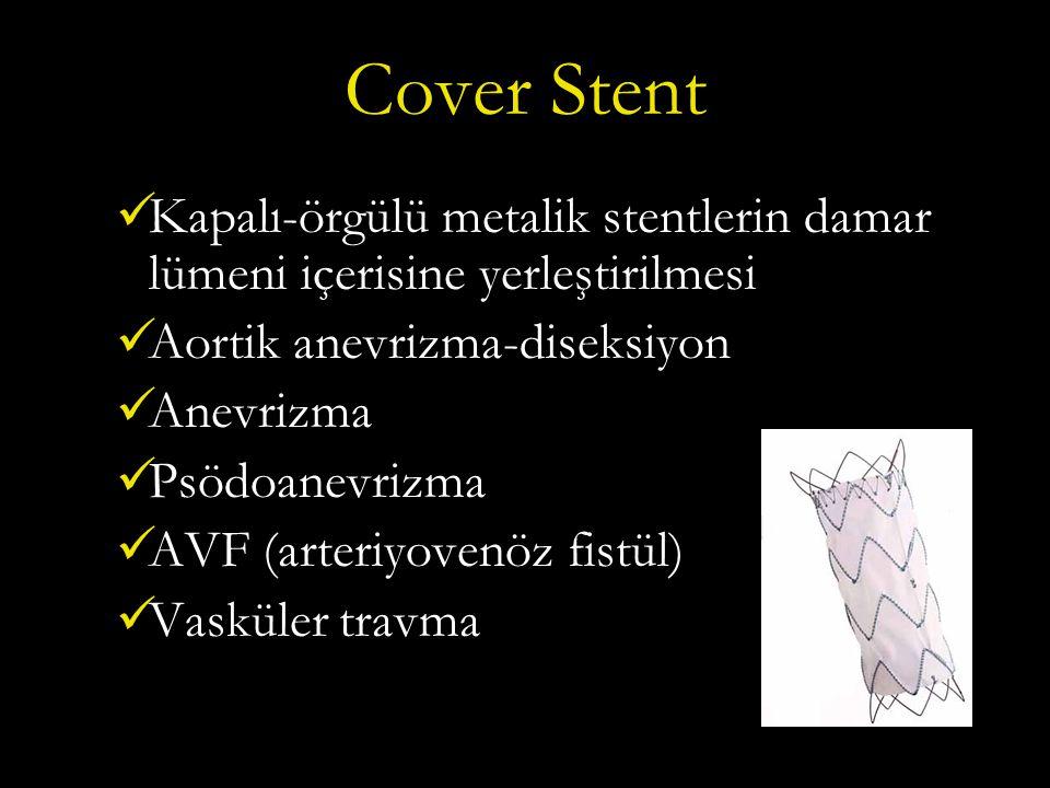 Cover Stent Kapalı-örgülü metalik stentlerin damar lümeni içerisine yerleştirilmesi. Aortik anevrizma-diseksiyon.