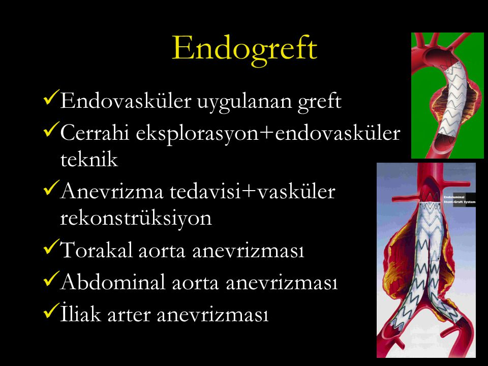Endogreft Endovasküler uygulanan greft